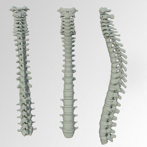 wervelkolom-lage-rugpijn